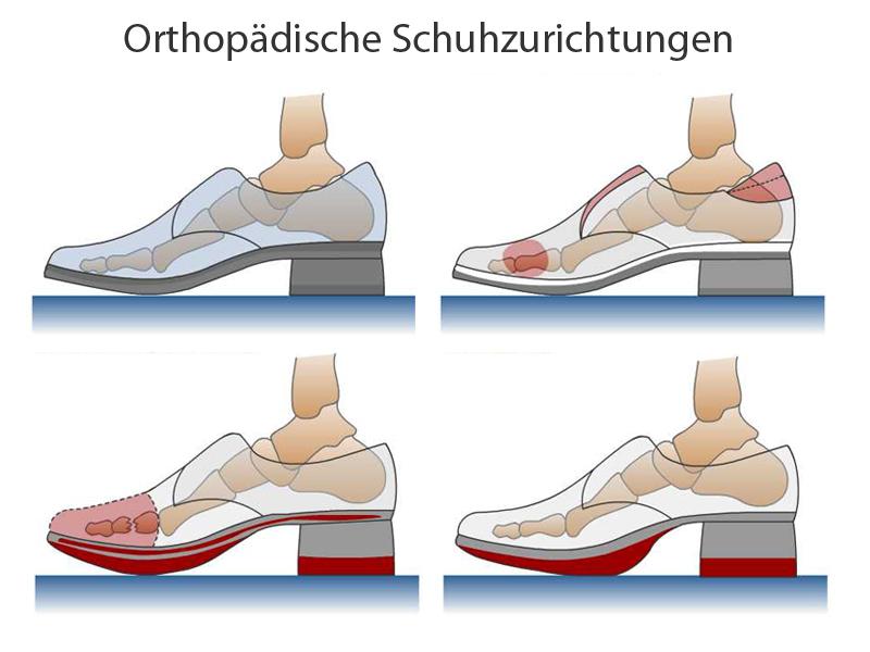 Orhtopädische Schuhzurichtung